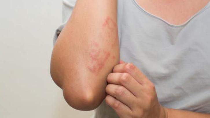Alergi sangat mengganggu terutama ketika Anda sedang beraktifitas. (Foto: The Conversation)