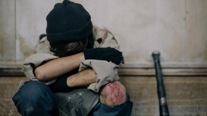 Kecelakaan dan terjatuh akan mengakibatkan bekas luka yang cukup membandel. (Foto: Pexels - cottonbro)